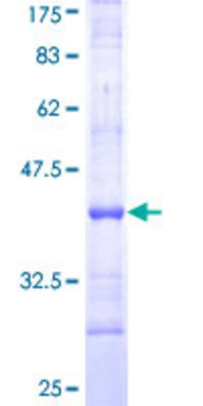 Abnova™Human IL1R2 Partial ORF (NP_004624, 21 a.a. - 120 a.a.) Recombinant Protein with GST-tag at N-terminal 10μg Abnova™Human IL1R2 Partial ORF (NP_004624, 21 a.a. - 120 a.a.) Recombinant Protein with GST-tag at N-terminal
