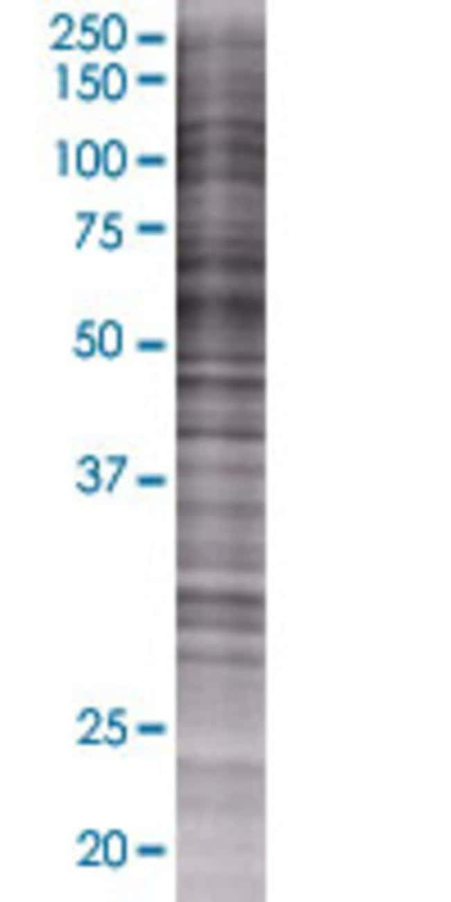 Abnova IFRD2 293T Cell Transient Overexpression Lysate (Denatured) 100µL:Life