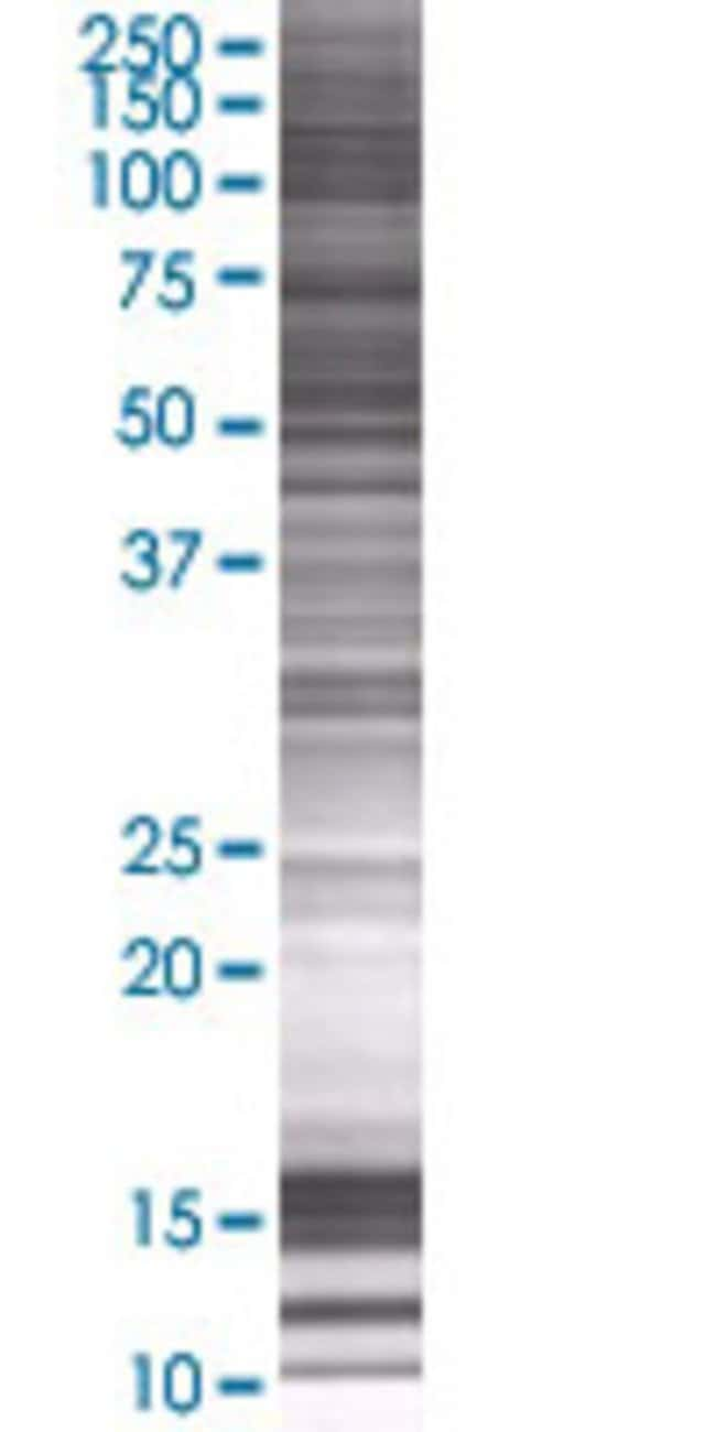 AbnovaALDH5A1 293T Cell Transient Overexpression Lysate (Denatured) (T01)