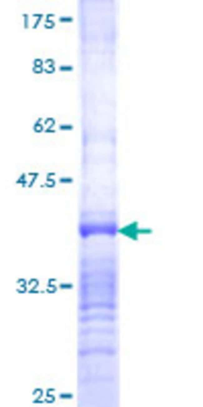 Abnova™Human HSD17B8 Partial ORF (NP_055049, 28 a.a. - 127 a.a.) Recombinant Protein with GST-tag at N-terminal 25μg Abnova™Human HSD17B8 Partial ORF (NP_055049, 28 a.a. - 127 a.a.) Recombinant Protein with GST-tag at N-terminal