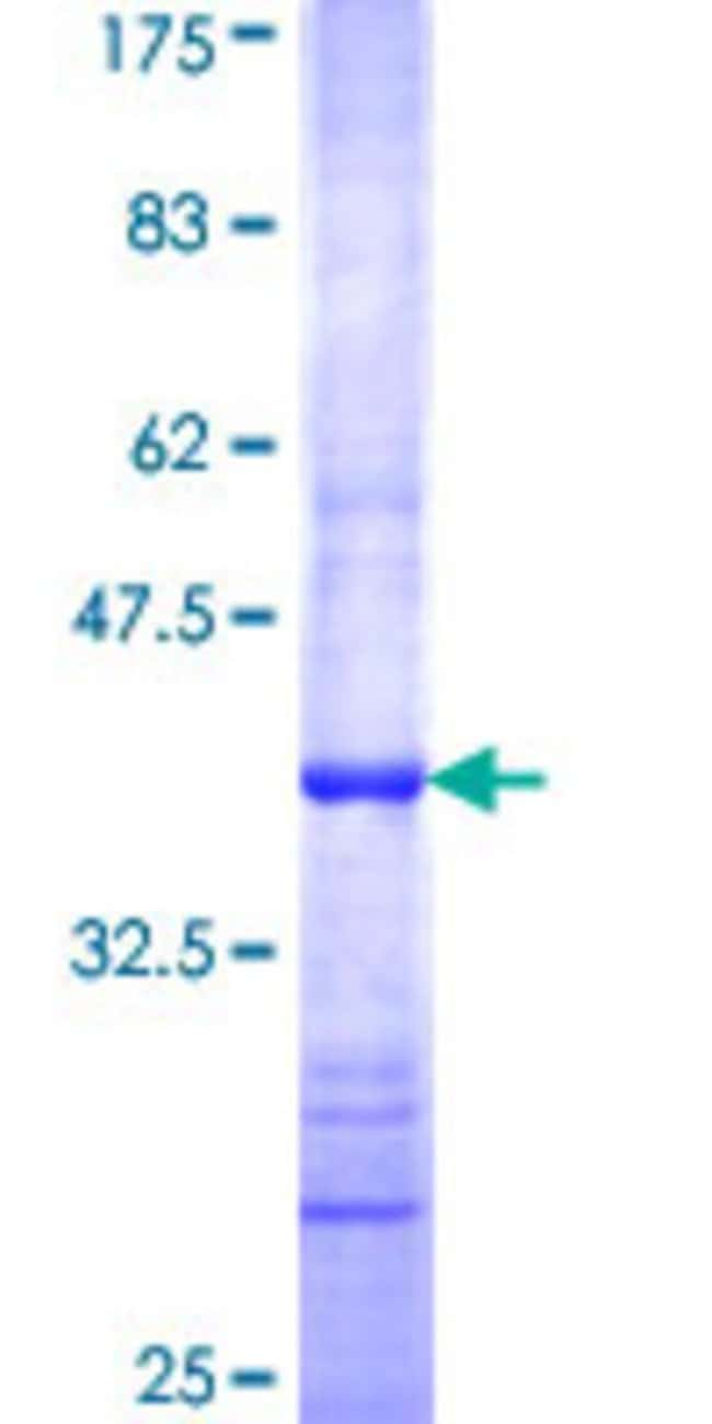 Abnova™Human MTERF Partial ORF (NP_008911, 1 a.a. - 100 a.a.) Recombinant Protein with GST-tag at N-terminal 10μg Abnova™Human MTERF Partial ORF (NP_008911, 1 a.a. - 100 a.a.) Recombinant Protein with GST-tag at N-terminal
