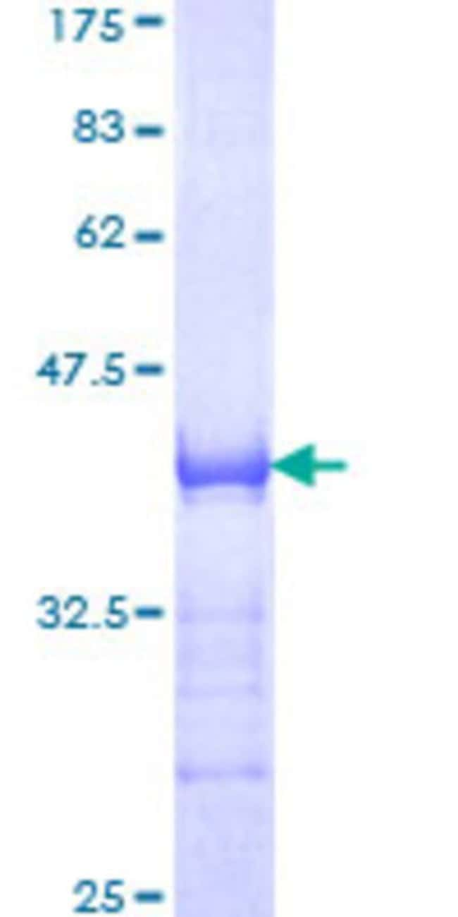 Abnova Human MLLT10 Partial ORF (NP_001009569, 695 a.a. - 793 a.a.) Recombinant