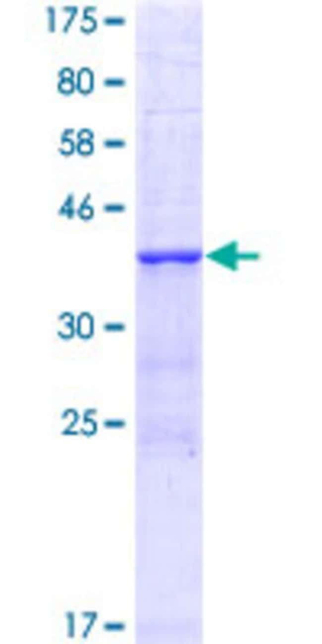 Abnova™Human NCOA4 Partial ORF (NP_005428, 505 a.a. - 614 a.a.) Recombinant Protein with GST-tag at N-terminal 25μg Abnova™Human NCOA4 Partial ORF (NP_005428, 505 a.a. - 614 a.a.) Recombinant Protein with GST-tag at N-terminal