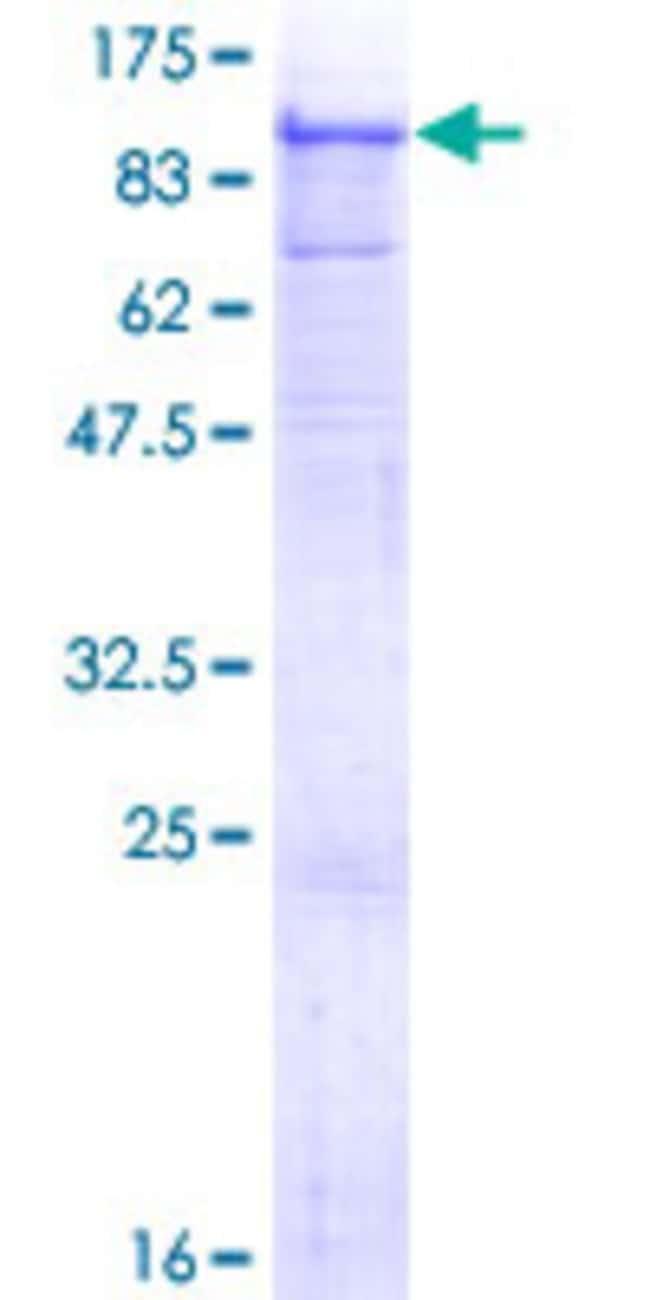 AbnovaHuman ADAM12 Full-length ORF (AAH60804.1, 1 a.a. - 737 a.a.) Recombinant