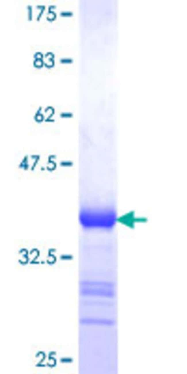 Abnova™Human CSRP3 Partial ORF (NP_003467, 95 a.a. - 194 a.a.) Recombinant Protein with GST-tag at N-terminal 10μg Abnova™Human CSRP3 Partial ORF (NP_003467, 95 a.a. - 194 a.a.) Recombinant Protein with GST-tag at N-terminal