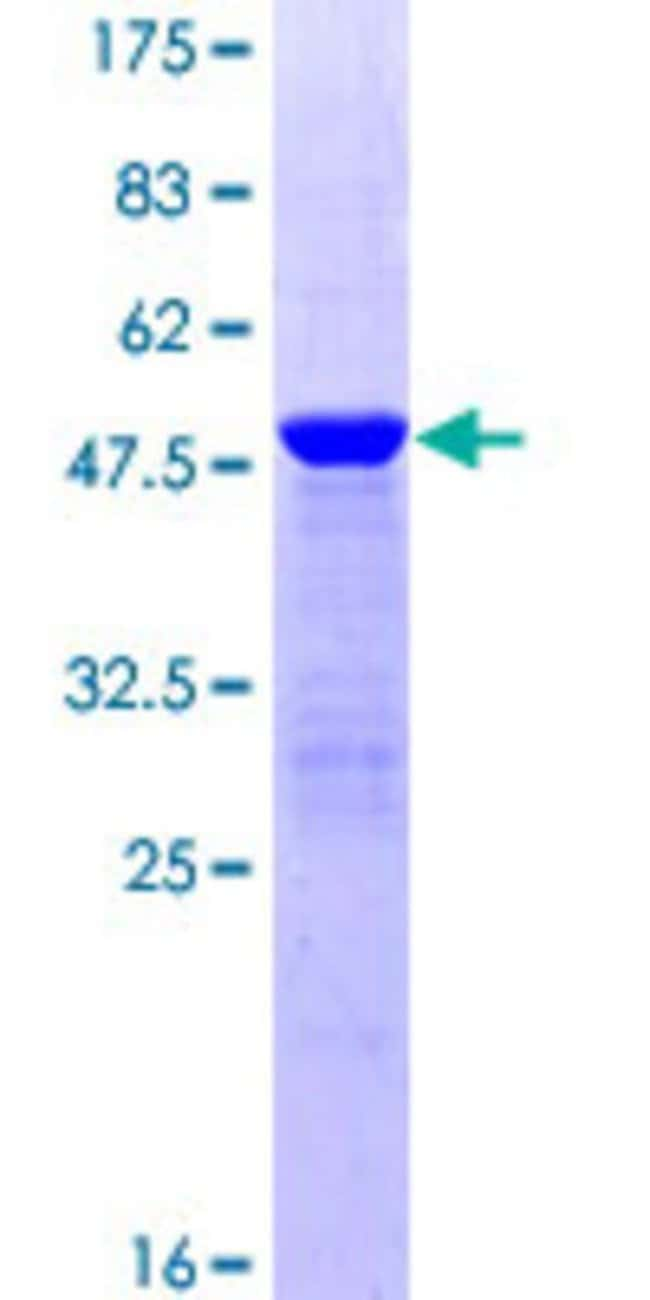 Abnova™Human PTP4A2 Full-length ORF (NP_536316.1, 1 a.a. - 167 a.a.) Recombinant Protein with GST-tag at N-terminal 25μg Abnova™Human PTP4A2 Full-length ORF (NP_536316.1, 1 a.a. - 167 a.a.) Recombinant Protein with GST-tag at N-terminal