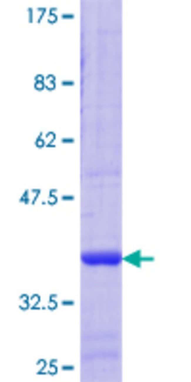 Abnova Human PTP4A2 Partial ORF (NP_003470.1, 1 a.a. - 95 a.a.) Recombinant