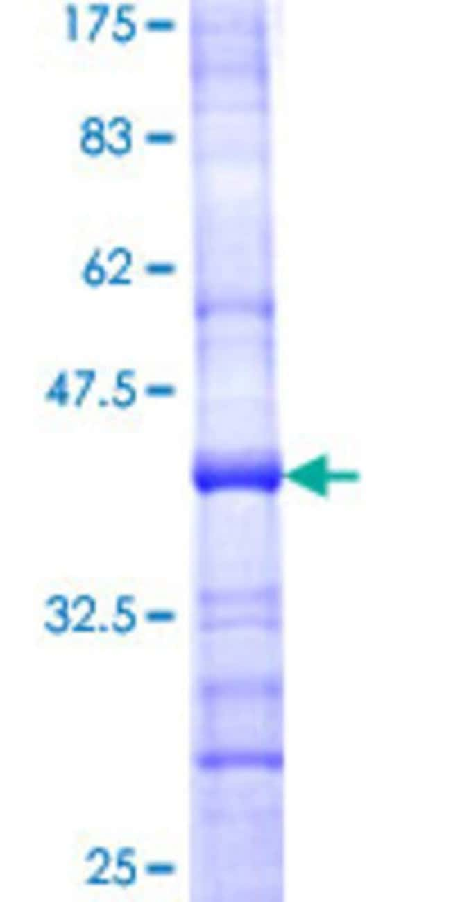 Abnova™Human AAAS Partial ORF (NP_056480, 1 a.a. - 100 a.a.) Recombinant Protein with GST-tag at N-terminal 10μg Abnova™Human AAAS Partial ORF (NP_056480, 1 a.a. - 100 a.a.) Recombinant Protein with GST-tag at N-terminal