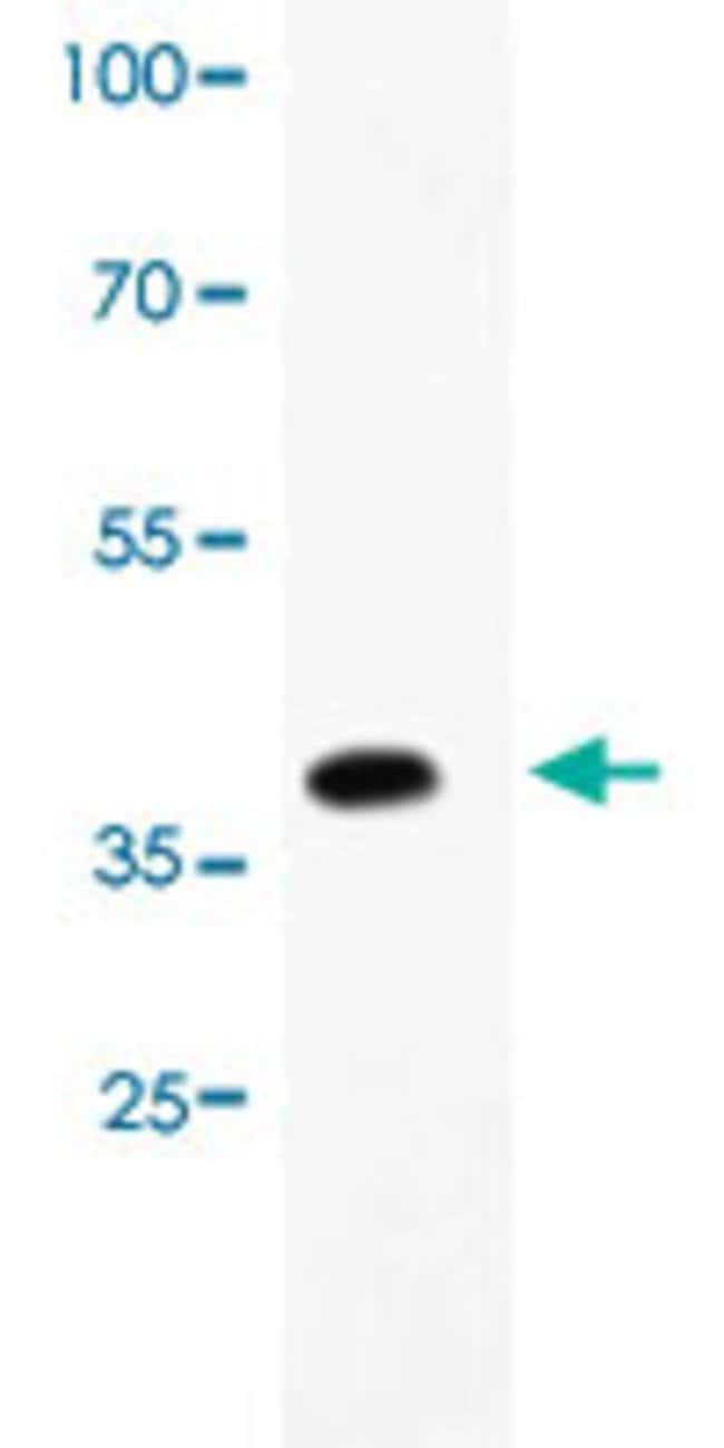 TRPV1 Rabbit anti-Human, Polyclonal , Abnova 100μg; Unlabeled:Antibodies