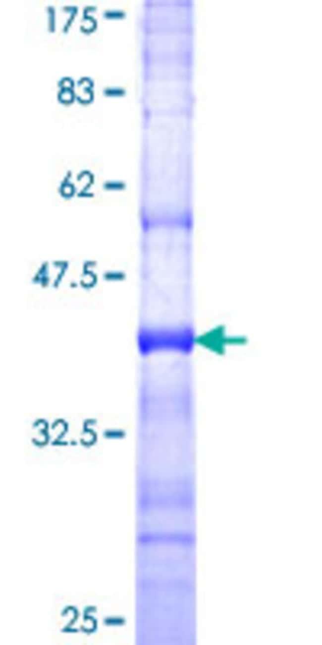 AbnovaHuman AKAP1 Partial ORF (NP_003479, 806 a.a. - 903 a.a.) Recombinant