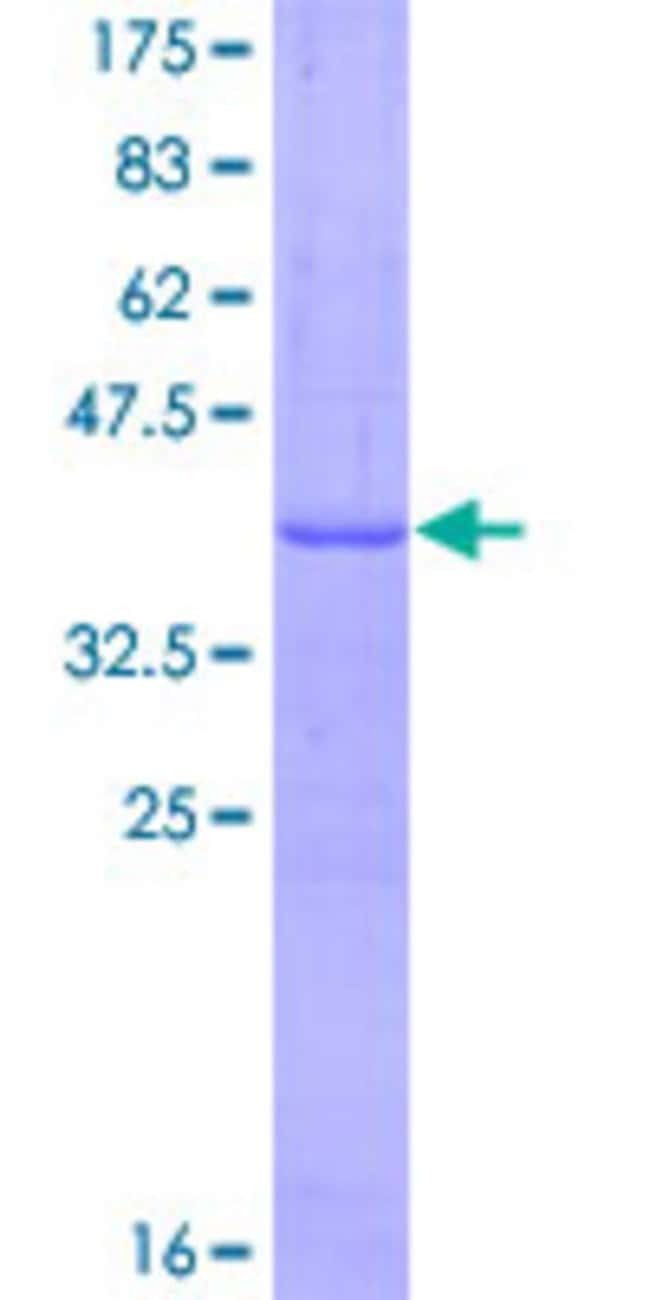 Abnova™Human SLC14A2 Partial ORF (NP_009094, 40 a.a. - 128 a.a.) Recombinant Protein with GST-tag at N-terminal 10μg Abnova™Human SLC14A2 Partial ORF (NP_009094, 40 a.a. - 128 a.a.) Recombinant Protein with GST-tag at N-terminal