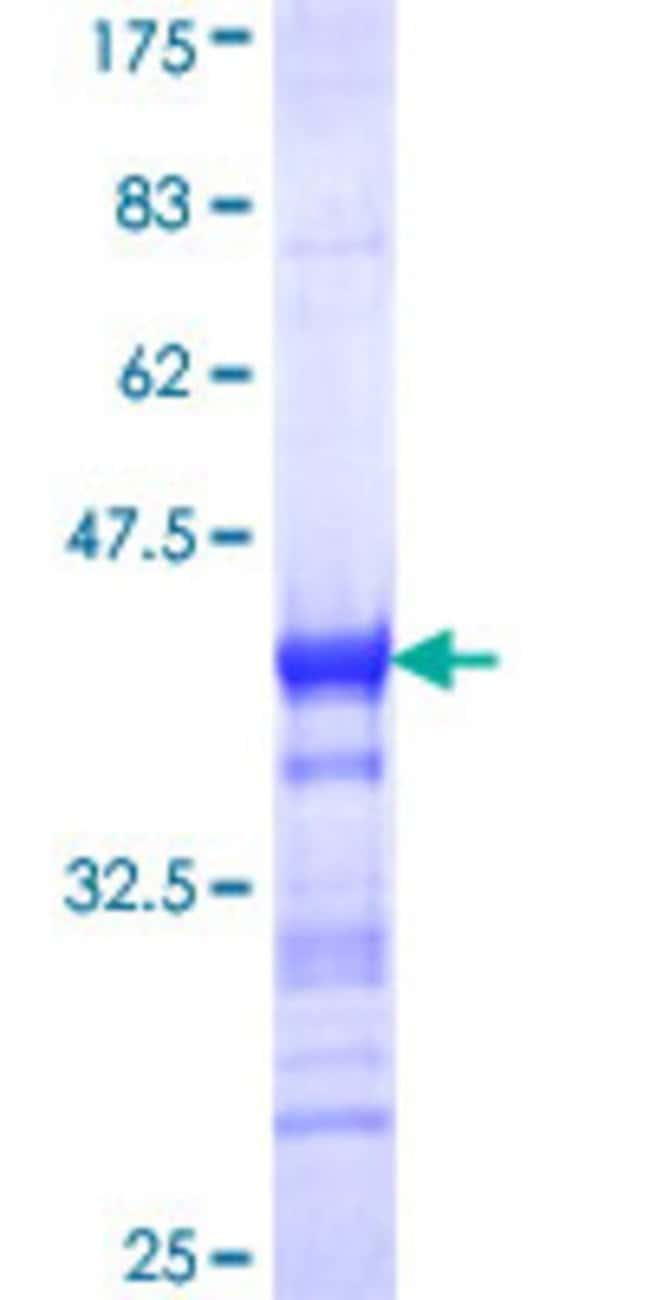 Abnova™Human NRIP1 Partial ORF (NP_003480, 1051 a.a. - 1158 a.a.) Recombinant Protein with GST-tag at N-terminal 10μg Abnova™Human NRIP1 Partial ORF (NP_003480, 1051 a.a. - 1158 a.a.) Recombinant Protein with GST-tag at N-terminal