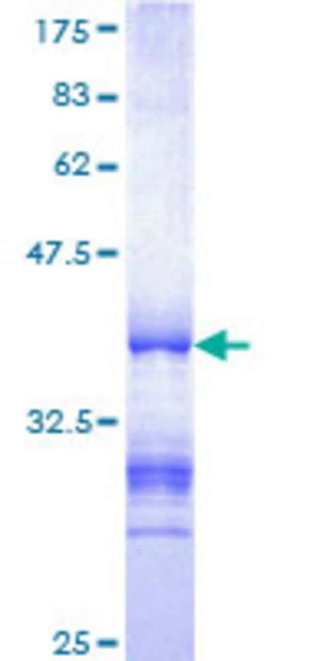 Abnova™Human DGCR14 Partial ORF (NP_073210, 377 a.a. - 476 a.a.) Recombinant Protein with GST-tag at N-terminal 25μg Abnova™Human DGCR14 Partial ORF (NP_073210, 377 a.a. - 476 a.a.) Recombinant Protein with GST-tag at N-terminal