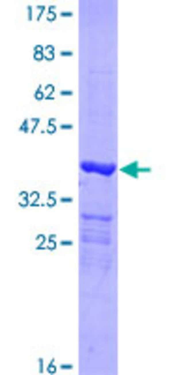 Abnova Human HDHD1A Partial ORF (NP_036212.2, 107 a.a. - 212 a.a.) Recombinant