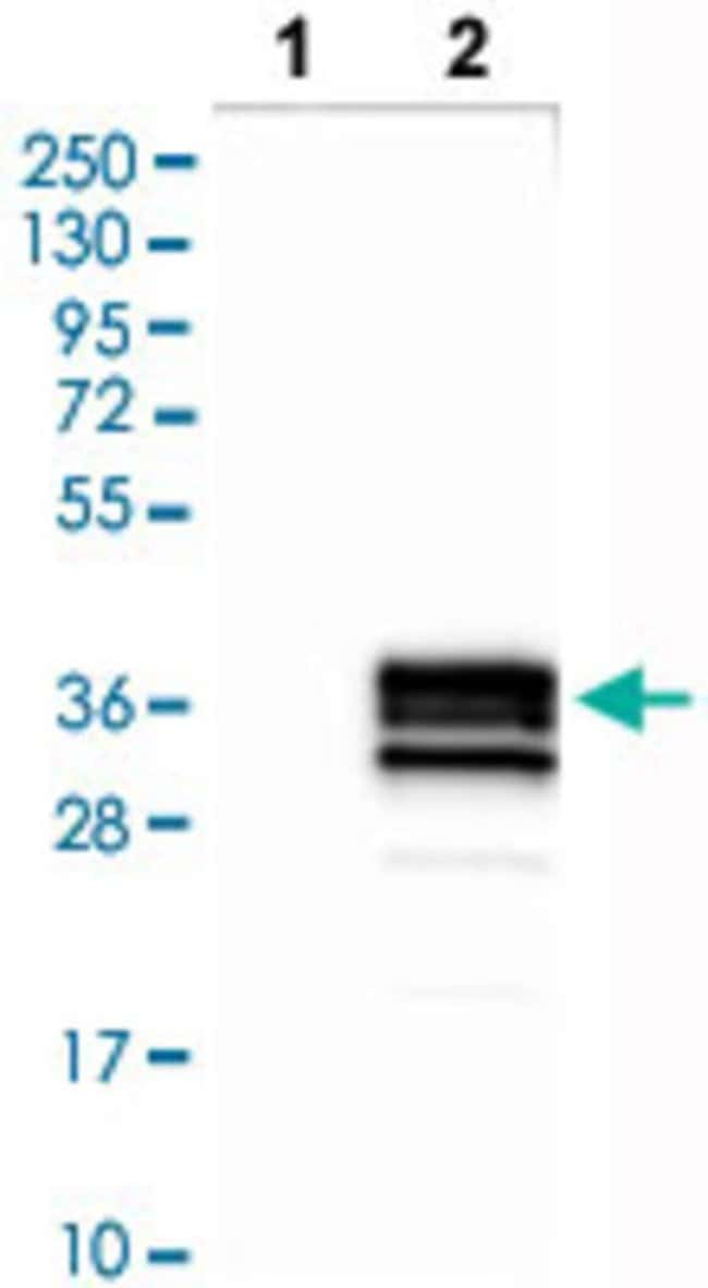 CD79B Rabbit anti-Human, Polyclonal , Abnova 100μL; Unlabeled:Antibodies