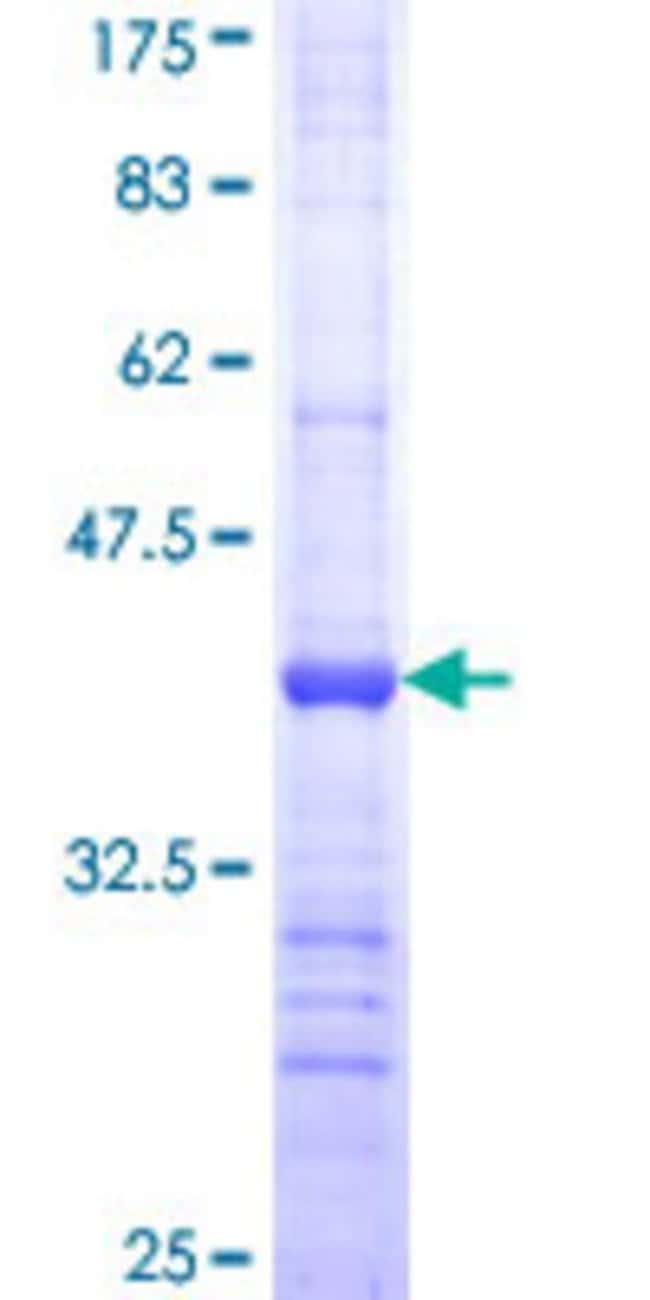 AbnovaHuman ACOX2 Partial ORF (NP_003491, 582 a.a. - 681 a.a.) Recombinant