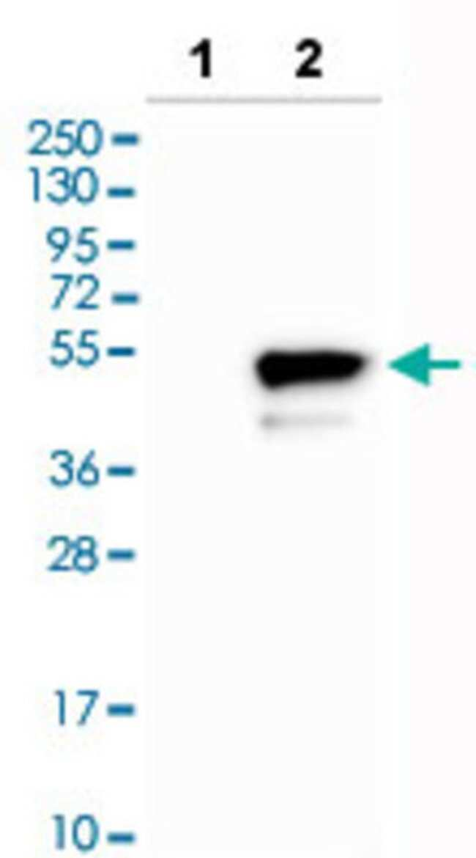 CD276 Rabbit anti-Human, Polyclonal , Abnova 100μL; Unlabeled:Antibodies
