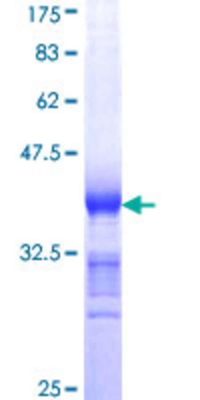 AbnovaHuman AXIN1 Partial ORF (NP_003493, 643 a.a. - 740 a.a.) Recombinant
