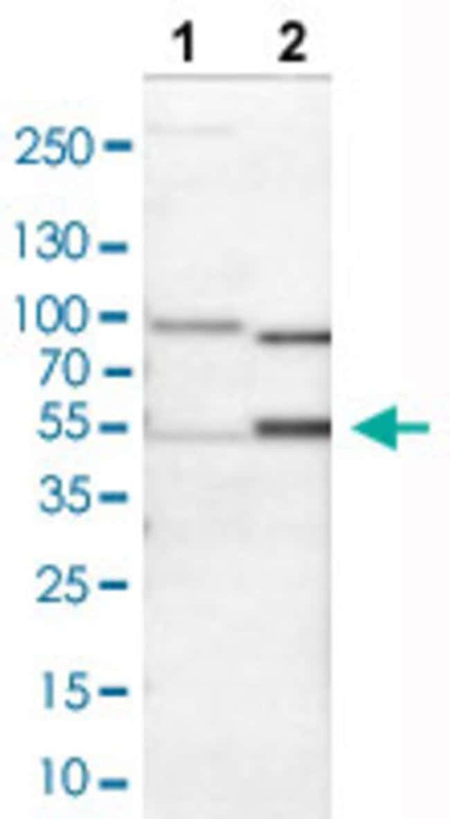 NT5E Rabbit anti-Human, Mouse, Rat, Polyclonal , Abnova 100μL; Unlabeled:Antibodies
