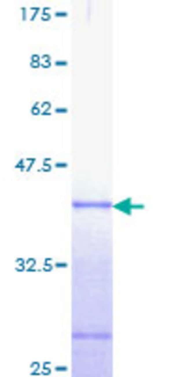 AbnovaHuman AXIN2 Partial ORF (NP_004646, 611 a.a. - 710 a.a.) Recombinant