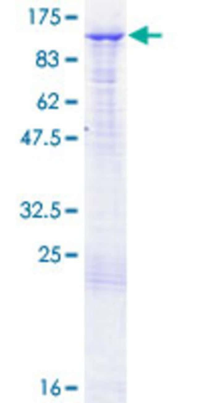 Abnova™Human BAP1 Full-length ORF (NP_004647.1, 1 a.a. - 729 a.a.) Recombinant Protein with GST-tag at N-terminal 10μg Abnova™Human BAP1 Full-length ORF (NP_004647.1, 1 a.a. - 729 a.a.) Recombinant Protein with GST-tag at N-terminal