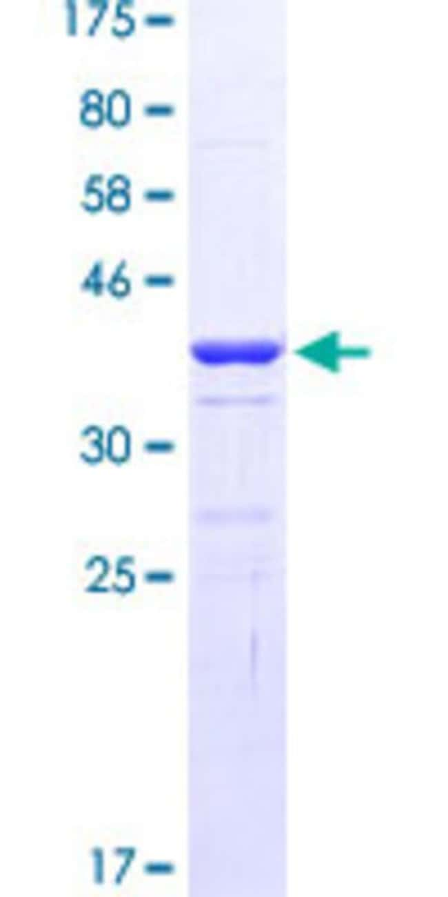 Abnova™Human EOMES Partial ORF (NP_005433.2, 461 a.a. - 569 a.a.) Recombinant Protein with GST-tag at N-terminal 25μg Abnova™Human EOMES Partial ORF (NP_005433.2, 461 a.a. - 569 a.a.) Recombinant Protein with GST-tag at N-terminal