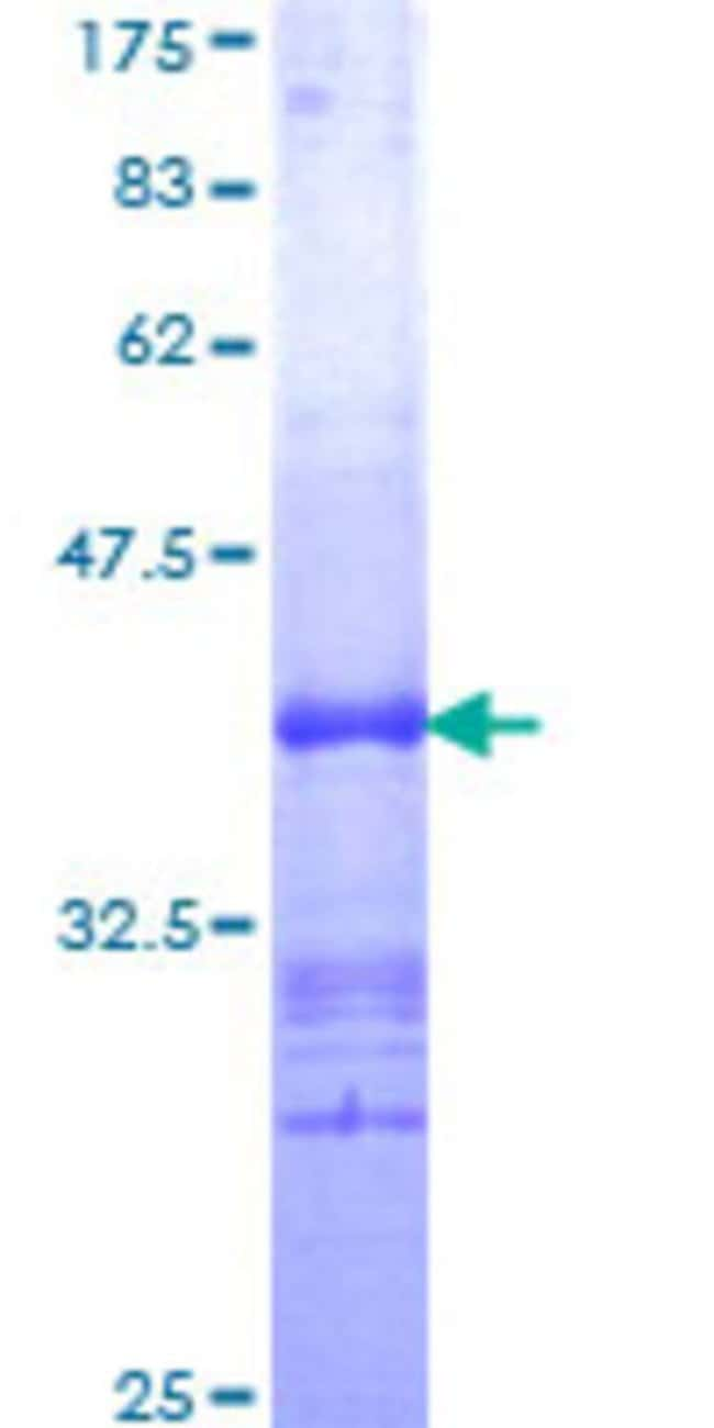 Abnova™Human FZD4 Partial ORF (NP_036325, 107 a.a. - 206 a.a.) Recombinant Protein with GST-tag at N-terminal 10μg Abnova™Human FZD4 Partial ORF (NP_036325, 107 a.a. - 206 a.a.) Recombinant Protein with GST-tag at N-terminal