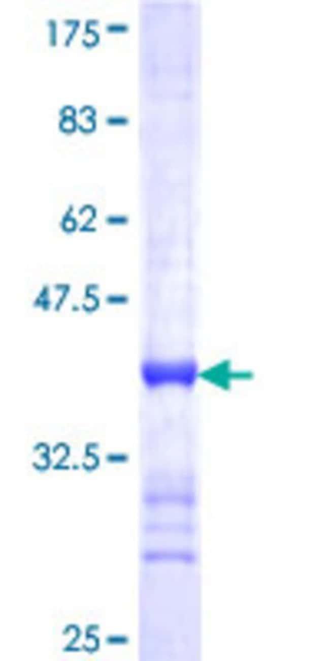 Abnova Human NME5 Partial ORF (NP_003542, 121 a.a. - 212 a.a.) Recombinant