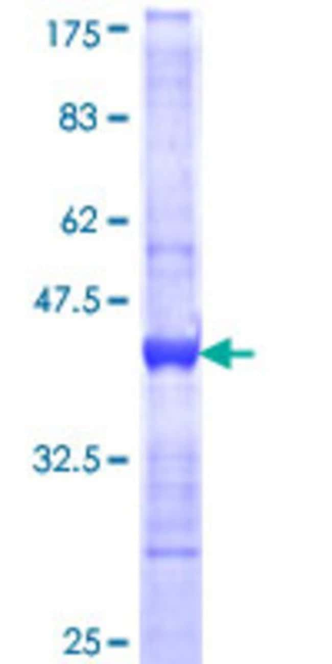 Abnova™Human PIP5K1B Partial ORF (NP_003549, 201 a.a. - 310 a.a.) Recombinant Protein with GST-tag at N-terminal 10μg Abnova™Human PIP5K1B Partial ORF (NP_003549, 201 a.a. - 310 a.a.) Recombinant Protein with GST-tag at N-terminal