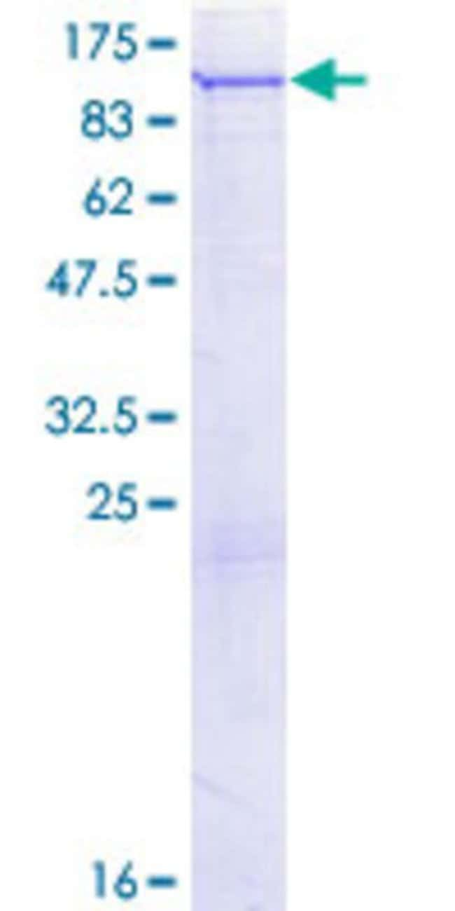 Abnova™Human PLA2G6 Full-length ORF (NP_001004426.1, 1 a.a. - 752 a.a.) Recombinant Protein with GST-tag at N-terminal 25μg Abnova™Human PLA2G6 Full-length ORF (NP_001004426.1, 1 a.a. - 752 a.a.) Recombinant Protein with GST-tag at N-terminal