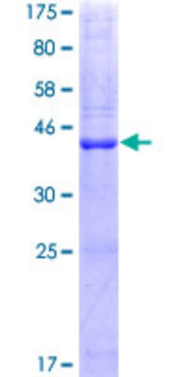 Abnova™Human PLA2G10 Full-length ORF (NP_003552.1, 1 a.a. - 165 a.a.) Recombinant Protein with GST-tag at N-terminal 25μg Abnova™Human PLA2G10 Full-length ORF (NP_003552.1, 1 a.a. - 165 a.a.) Recombinant Protein with GST-tag at N-terminal