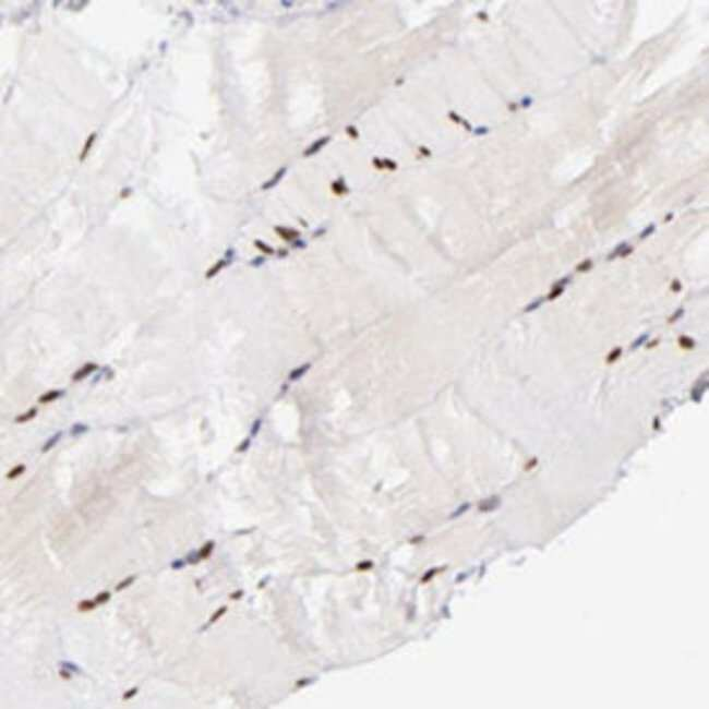 SOX6 Rabbit anti-Human, Polyclonal , Abnova 100μL; Unlabeled:Antibodies