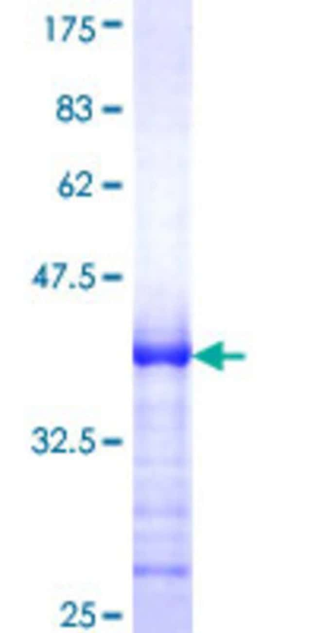 Abnova™Human RECK Partial ORF (NP_066934, 701 a.a. - 800 a.a.) Recombinant Protein with GST-tag at N-terminal 25μg Abnova™Human RECK Partial ORF (NP_066934, 701 a.a. - 800 a.a.) Recombinant Protein with GST-tag at N-terminal