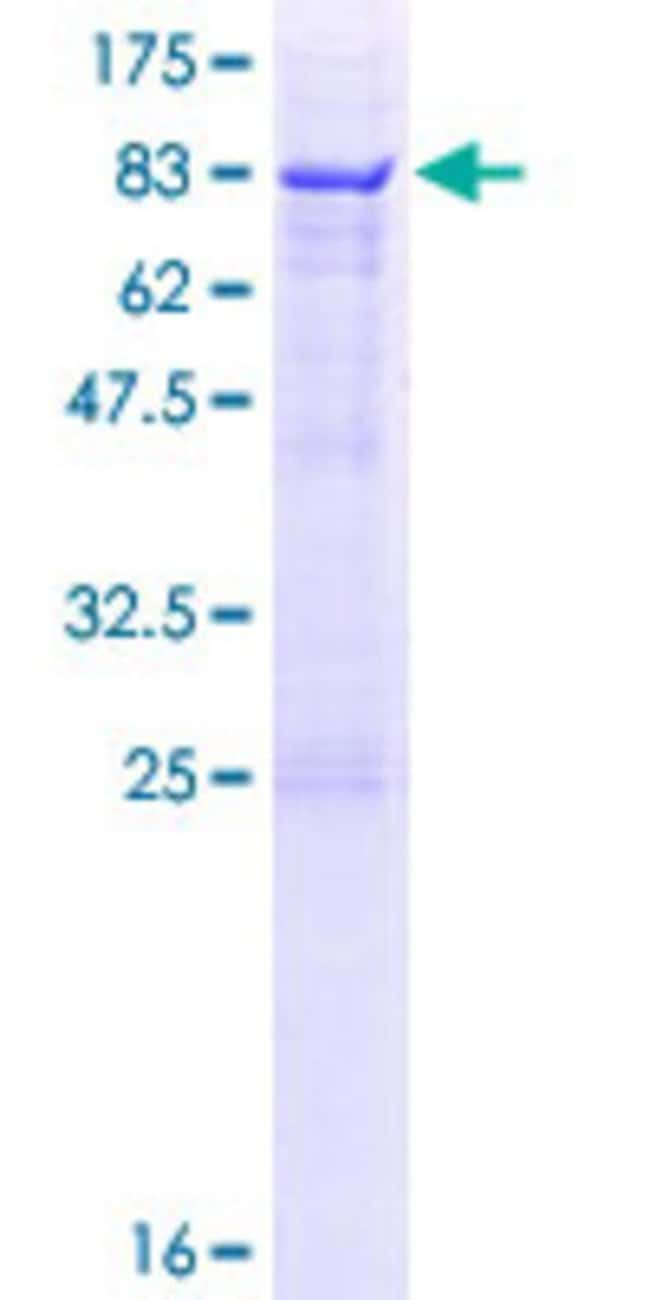 Abnova™Human SDPR Full-length ORF (NP_004648.1, 1 a.a. - 425 a.a.) Recombinant Protein with GST-tag at N-terminal 10μg Abnova™Human SDPR Full-length ORF (NP_004648.1, 1 a.a. - 425 a.a.) Recombinant Protein with GST-tag at N-terminal
