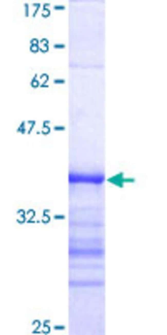 Abnova™Human DYRK2 Partial ORF (AAH05809, 1 a.a. - 100 a.a.) Recombinant Protein with GST-tag at N-terminal 25μg Abnova™Human DYRK2 Partial ORF (AAH05809, 1 a.a. - 100 a.a.) Recombinant Protein with GST-tag at N-terminal