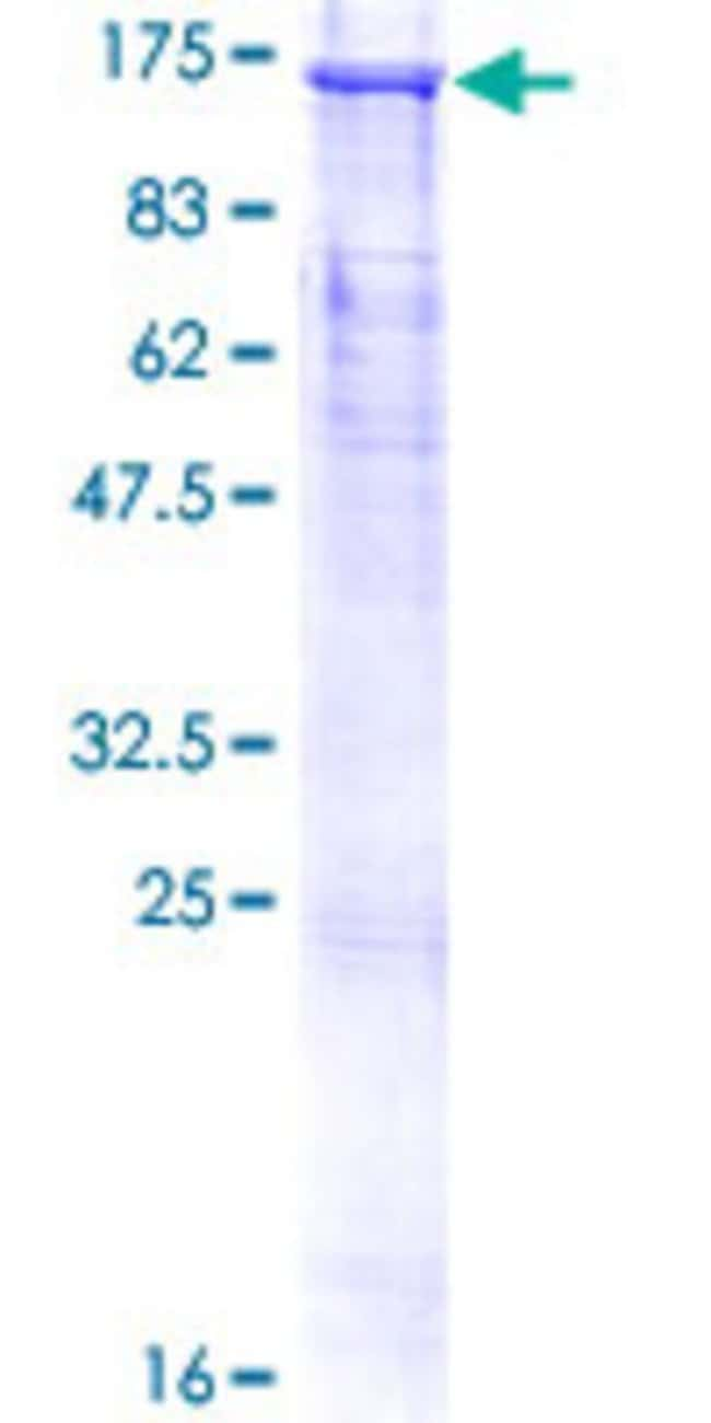 Abnova™Human CUL4B Full-length ORF (AAH36216.1, 1 a.a. - 913 a.a.) Recombinant Protein with GST-tag at N-terminal 25μg Abnova™Human CUL4B Full-length ORF (AAH36216.1, 1 a.a. - 913 a.a.) Recombinant Protein with GST-tag at N-terminal