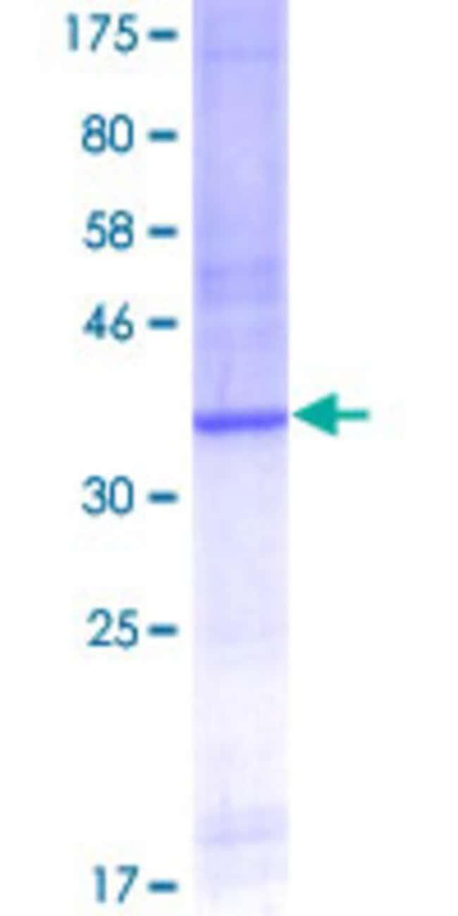 Abnova™Human CUL4A Partial ORF (AAH08308, 1 a.a. - 100 a.a.) Recombinant Protein with GST-tag at N-terminal 25μg Abnova™Human CUL4A Partial ORF (AAH08308, 1 a.a. - 100 a.a.) Recombinant Protein with GST-tag at N-terminal