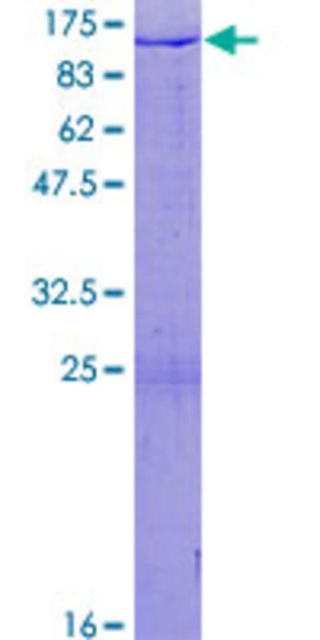 Abnova Human HIRIP3 Full-length ORF (NP_003600.2, 1 a.a. - 556 a.a.) Recombinant