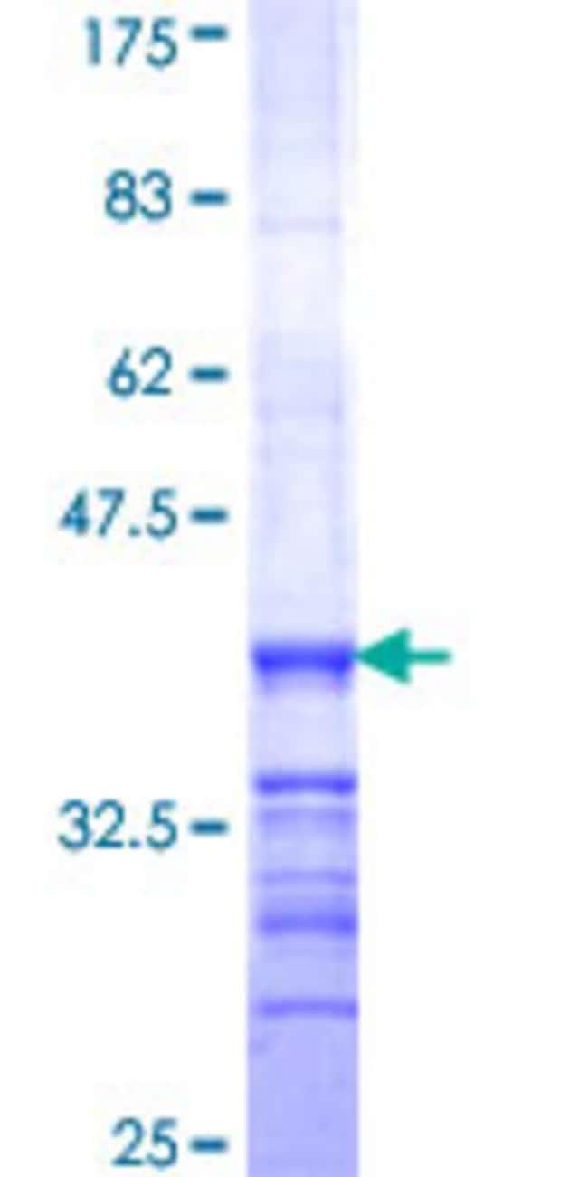 Abnova™Human PPFIA4 Partial ORF (NP_055868, 604 a.a. - 699 a.a.) Recombinant Protein with GST-tag at N-terminal 25μg Abnova™Human PPFIA4 Partial ORF (NP_055868, 604 a.a. - 699 a.a.) Recombinant Protein with GST-tag at N-terminal