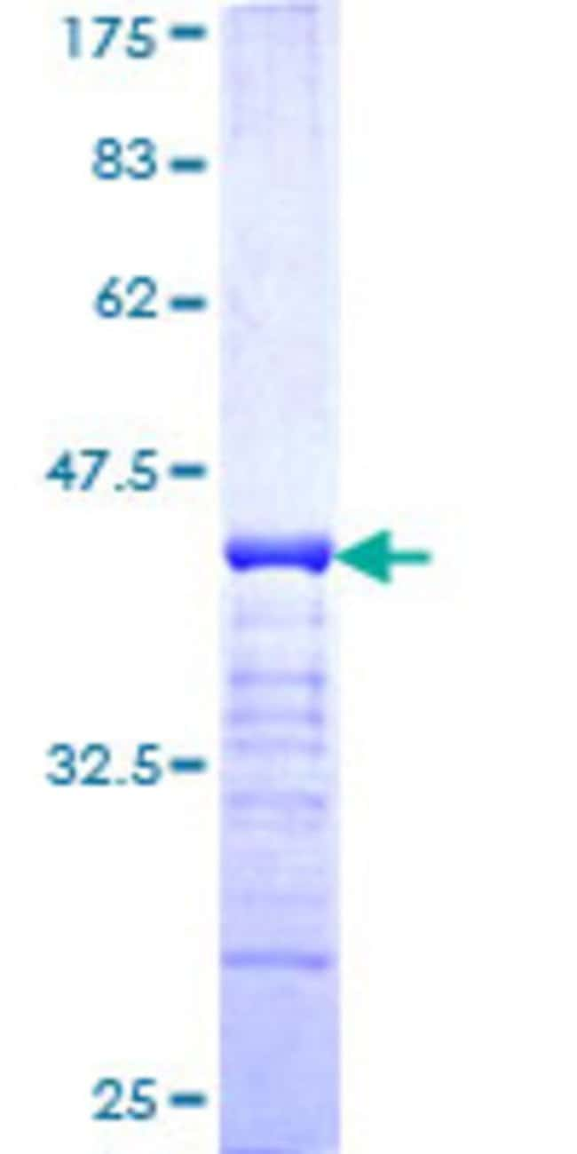 Abnova™Human PKP4 Partial ORF (NP_001005476, 12 a.a. - 110 a.a.) Recombinant Protein with GST-tag at N-terminal 25μg Abnova™Human PKP4 Partial ORF (NP_001005476, 12 a.a. - 110 a.a.) Recombinant Protein with GST-tag at N-terminal