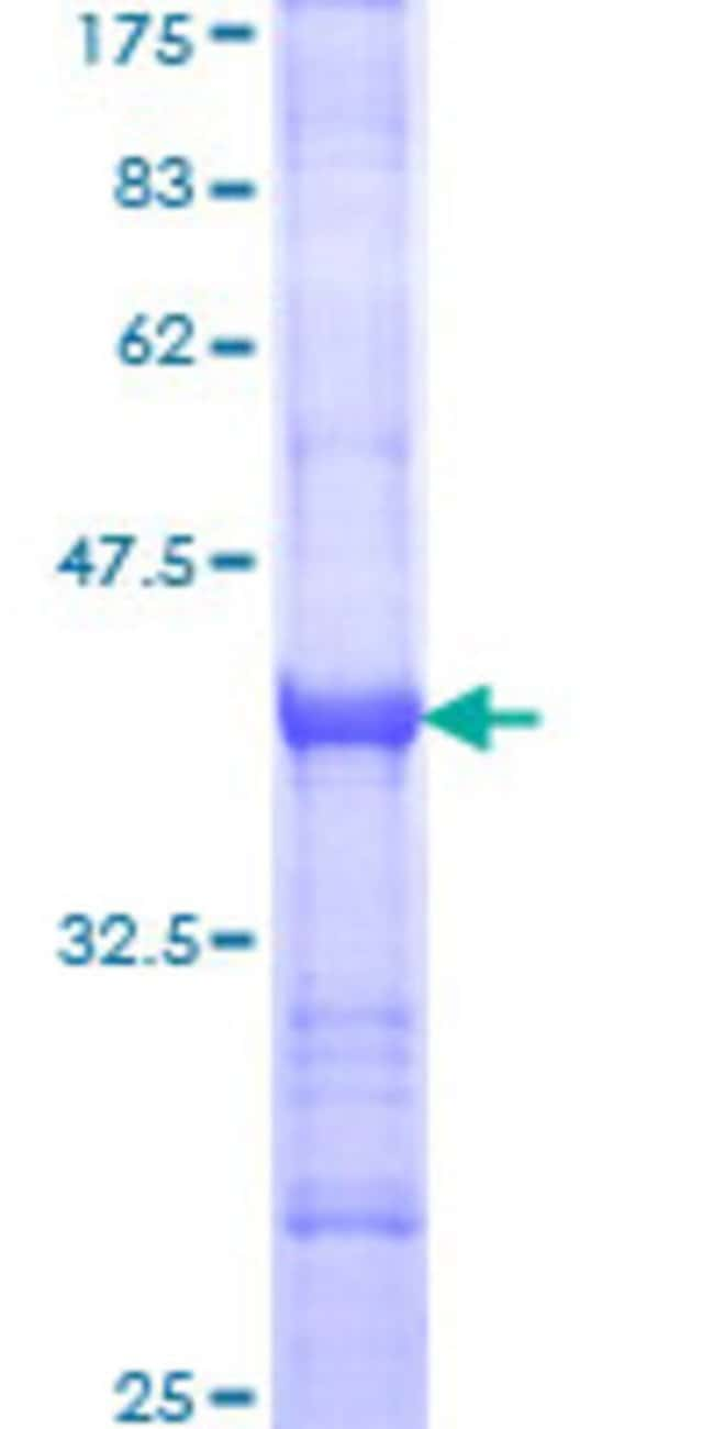 Abnova™Human CNTNAP1 Partial ORF (NP_003623, 22 a.a. - 131 a.a.) Recombinant Protein with GST-tag at N-terminal 10μg Abnova™Human CNTNAP1 Partial ORF (NP_003623, 22 a.a. - 131 a.a.) Recombinant Protein with GST-tag at N-terminal