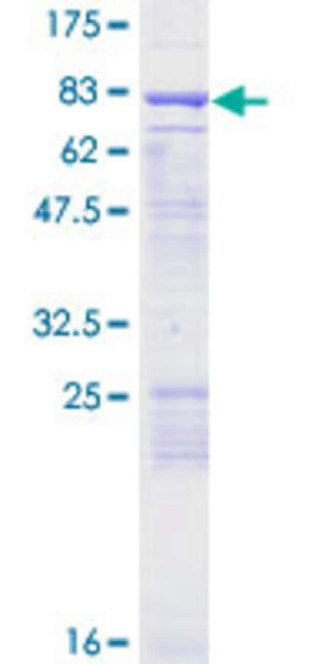 Abnova™Human ENC1 Full-length ORF (NP_003624.1, 1 a.a. - 589 a.a.) Recombinant Protein with GST-tag at N-terminal 25μg Abnova™Human ENC1 Full-length ORF (NP_003624.1, 1 a.a. - 589 a.a.) Recombinant Protein with GST-tag at N-terminal