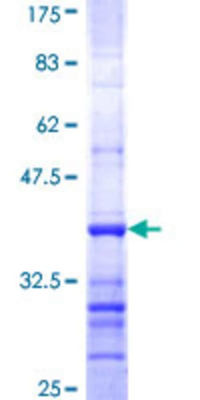 Abnova Human LIPF Partial ORF (NP_004181, 299 a.a. - 398 a.a.) Recombinant