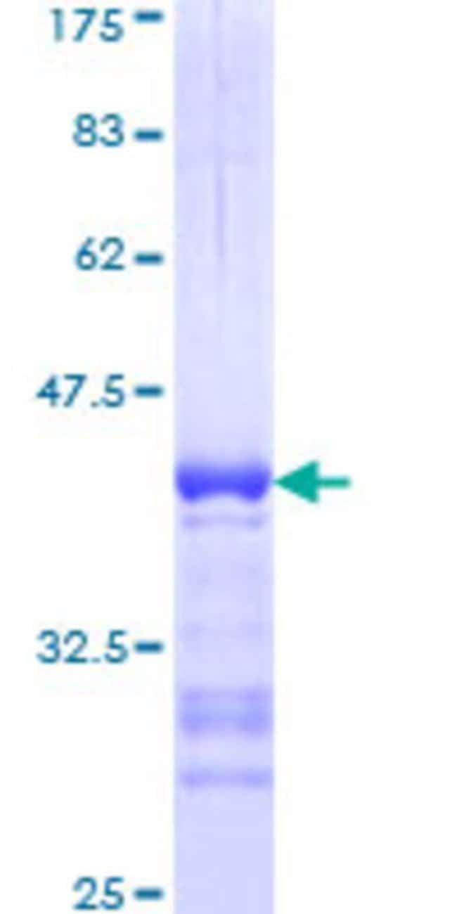 Abnova™Human IKBKG Partial ORF (NP_003630, 1 a.a. - 110 a.a.) Recombinant Protein with GST-tag at N-terminal 10μg Abnova™Human IKBKG Partial ORF (NP_003630, 1 a.a. - 110 a.a.) Recombinant Protein with GST-tag at N-terminal