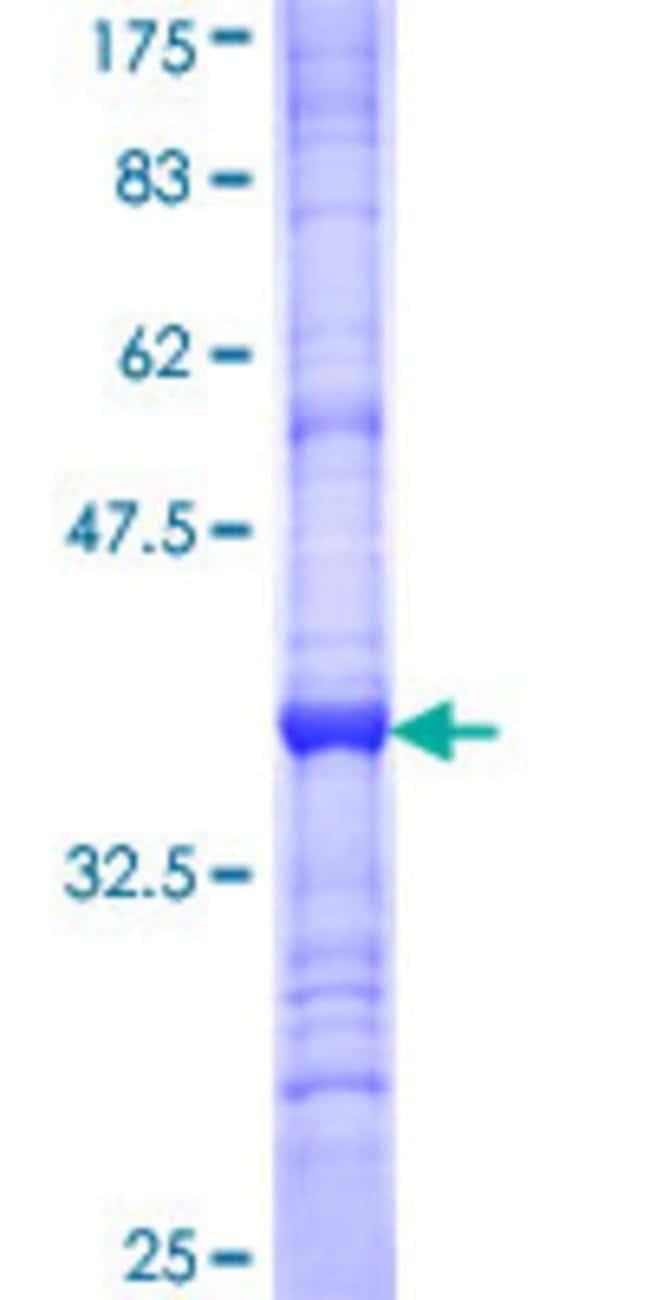 Abnova Human IKBKAP Partial ORF (NP_003631, 1242 a.a. - 1331 a.a.) Recombinant