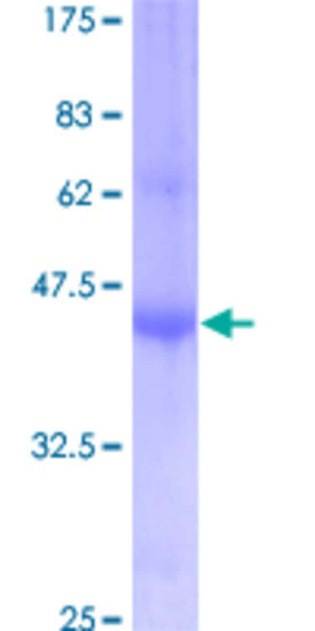 Abnova™Human IFITM1 Full-length ORF (AAH00897, 1 a.a. - 125 a.a.) Recombinant Protein with GST-tag at N-terminal 25μg Abnova™Human IFITM1 Full-length ORF (AAH00897, 1 a.a. - 125 a.a.) Recombinant Protein with GST-tag at N-terminal