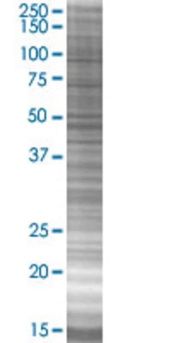 Abnova IFITM1 293T Cell Transient Overexpression Lysate (Denatured) (T01)