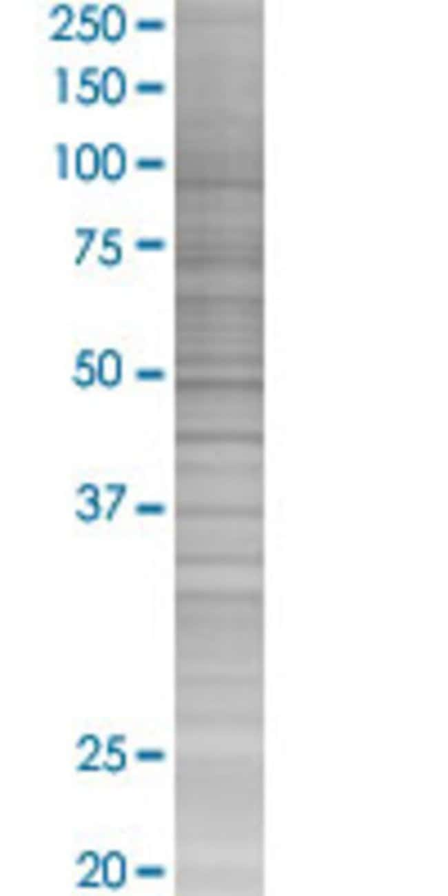 Abnova IFITM1 293T Cell Transient Overexpression Lysate (Denatured) (T04)