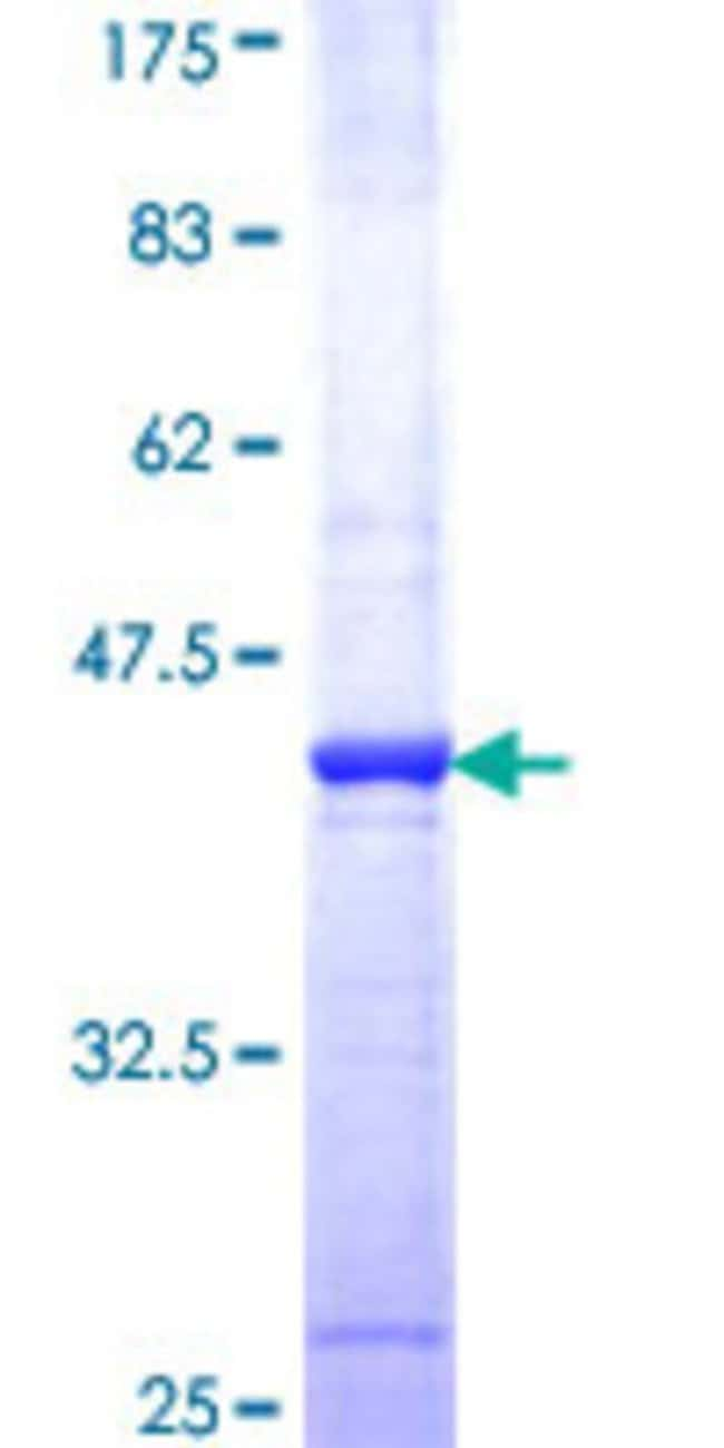 Abnova™ Human HAT1 Partial ORF (NP_003633, 310 a.a. - 419 a.a.) Recombinant Protein with GST-tag at N-terminal 10μg Abnova™ Human HAT1 Partial ORF (NP_003633, 310 a.a. - 419 a.a.) Recombinant Protein with GST-tag at N-terminal