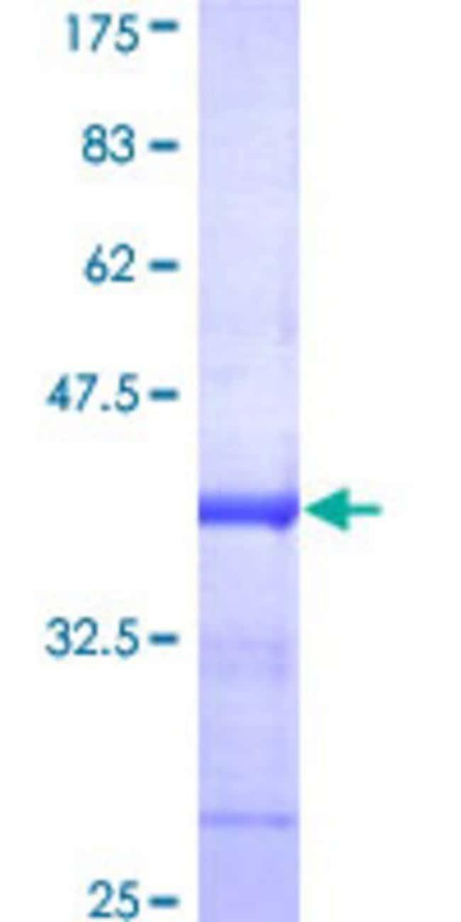 Abnova™Human DGKZ Partial ORF (AAH41770, 786 a.a. - 885 a.a.) Recombinant Protein with GST-tag at N-terminal 10μg Abnova™Human DGKZ Partial ORF (AAH41770, 786 a.a. - 885 a.a.) Recombinant Protein with GST-tag at N-terminal